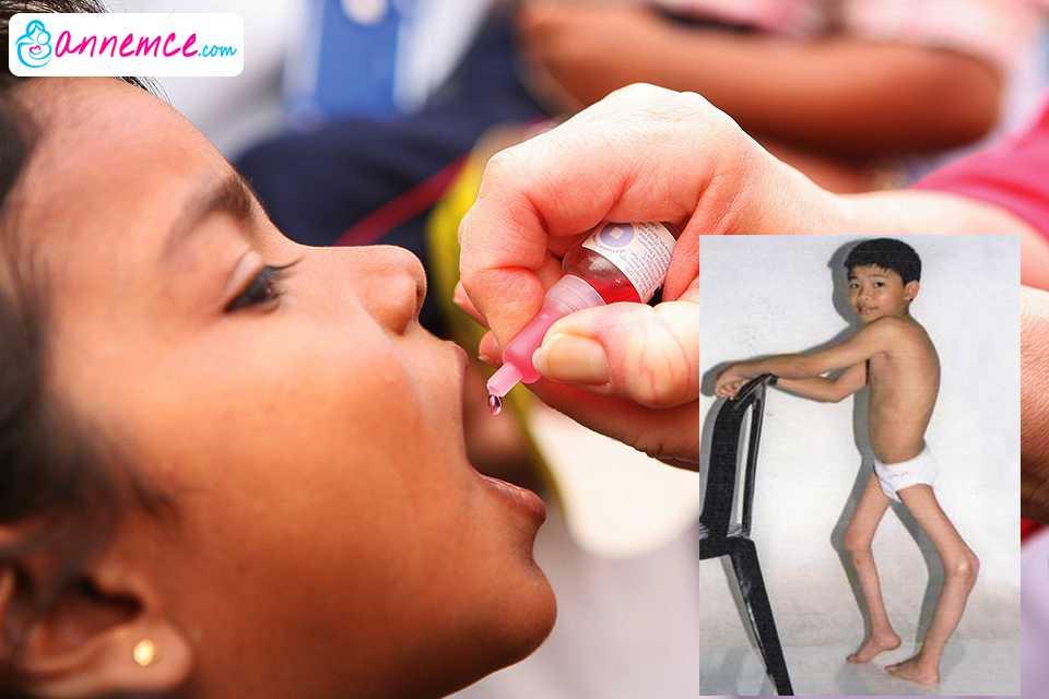 Çocuk Felci Nedir? Çocuk Felci Aşısı Hakkında Bilinmesi Gerekenler