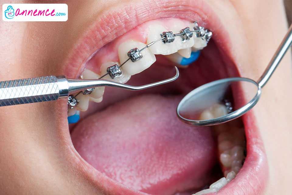 Çocuklarda Ortodontik Tedavi ve Merak Edilenler