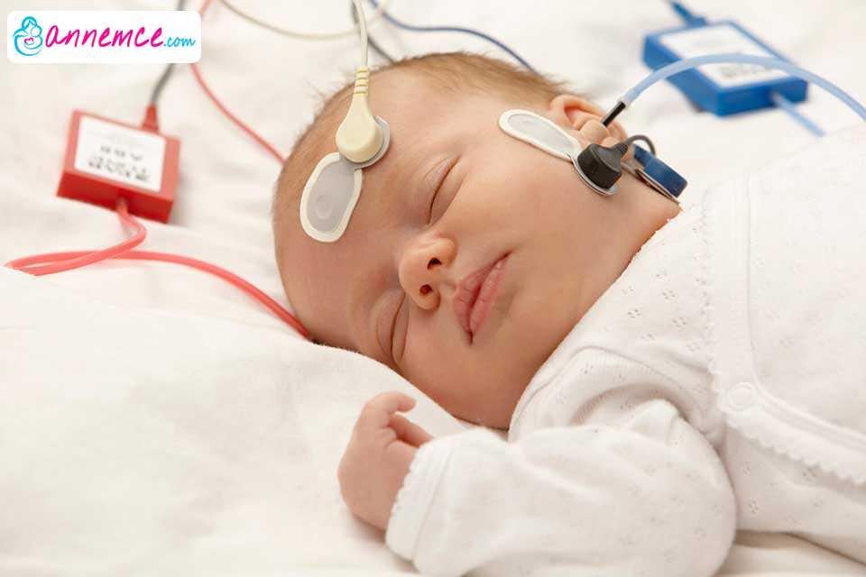 Yeni Doğan Bebeklerde İşitme Testi Ne Zaman Yapılmalıdır?