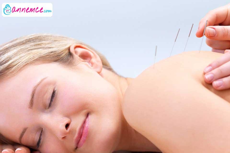 Doğumdan Önce ve Doğumdan Sonra Akupunktur