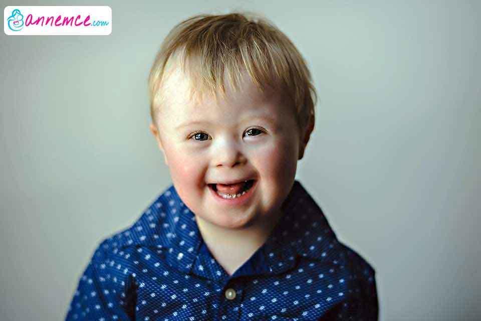 Çocuklarda Down Sendromu Nedir?