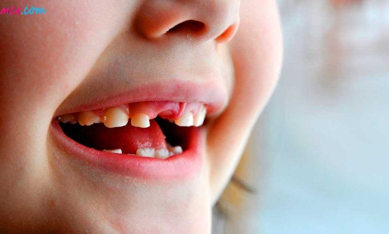 Bebek ve Çocuklarda Diş Çürümesi Nasıl Önlenir?