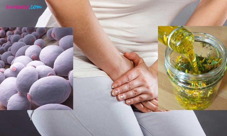 Vajinal Mantar Enfeksiyonlarına Bitkisel Tedavi Yöntemleri