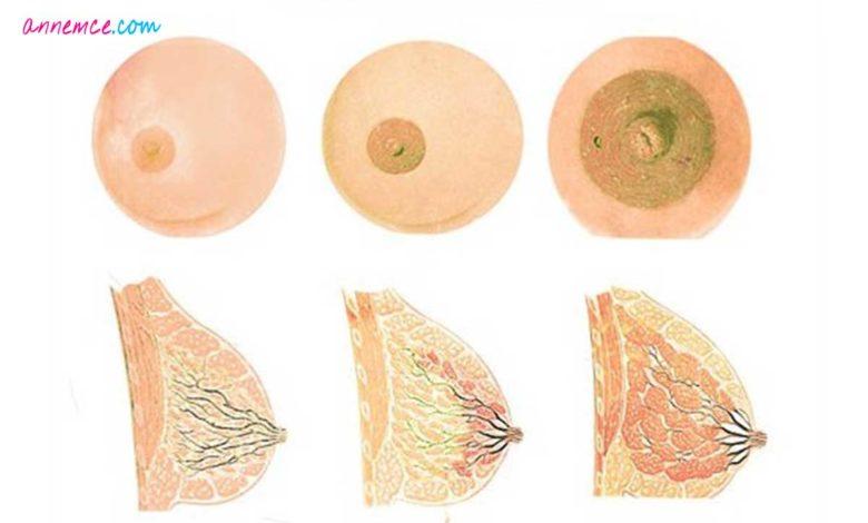 Hamilelikte Memenin Etrafındaki Kabarcıklar